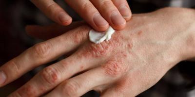 علاجات طبيعية للاكزيما
