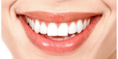 تعرفي على أفضل 5 أطعمة وطرق منزلية لتبييض الأسنان
