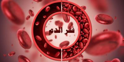 مرض فقر الدم: الأنواع، الأعراض، العلاج