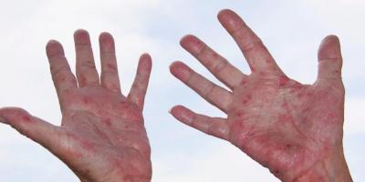 هل الاكزيما علامة على ضعف جهاز المناعة؟