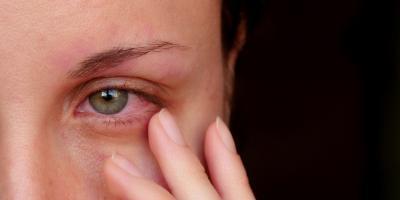 6 طرق بسيطة للتخلص من احمرار العين بالمنزل