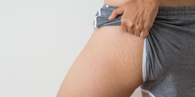 لماذا يجب أن نحب علامات التمدد في أجسامنا؟