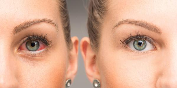التهاب قزحية العين